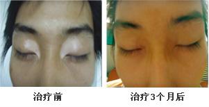 脸部眼角白癜风康复案例