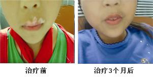 儿童面部白癜风康复案例