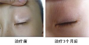 眼角白癜风康复案例