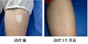 双臂白癜风康复案例