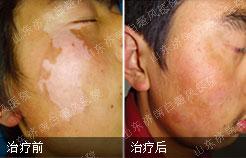 瑞士皮肤全层植补术案例