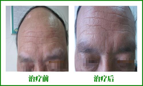 老年白癜风治疗前后对比图